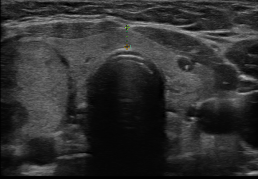 The nodule, schrodey, as seen by ultrasound.